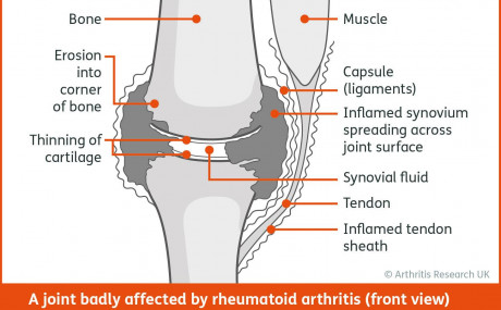 An Introduction to Rheumatoid Arthritis for Physios