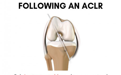 Return to sport following an ACLR